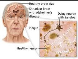 What is Alzheimer's disease disease? Causes, symptoms and treatment
